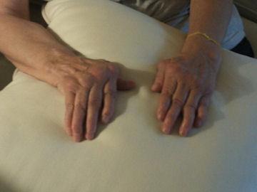 Roxie's Rheumatoid Arthritis story hand