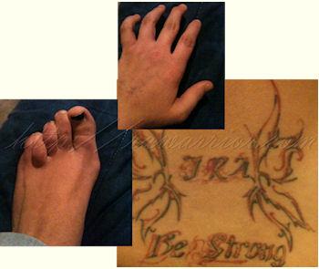 Toni's Rheumatoid Arthritis story 2