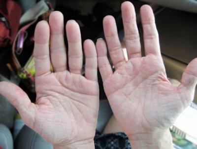 RA swollen hand