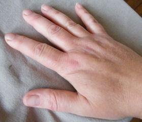 RA swollen fingers