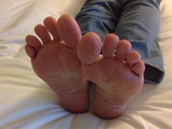 red feet Rheumatoid disease
