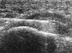 Rheumatoid Arthritis Ultrasound News Rheumatoid Arthritis Warrior