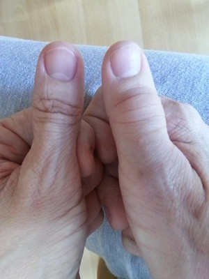 swollen rt thumb joints