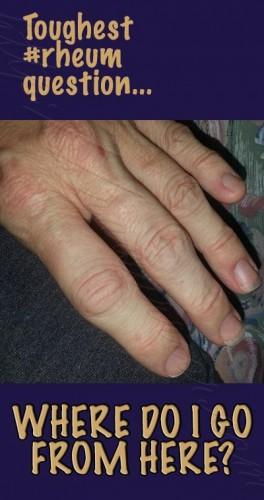 swollen-red-joints-rheum-pinterest