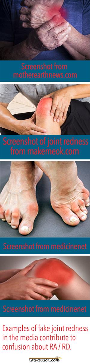 Joint Redness screenshots