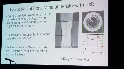 RA bone mineral density linked to mortality in RA / RD
