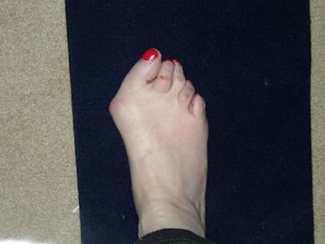 Ann's Rheumatoid Arthritis story foot