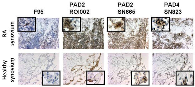 Rheumatoid synovium PAD slides