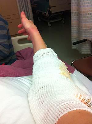 elbow interposition arthroplasty allograft Rheumatoid Disease