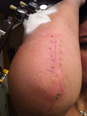 surgery Rheumatoid Disease elbow
