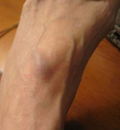 swollen blood vessel on foot with Rheumatoid Disease