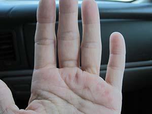 swollen fingers Rheumatoid Disease