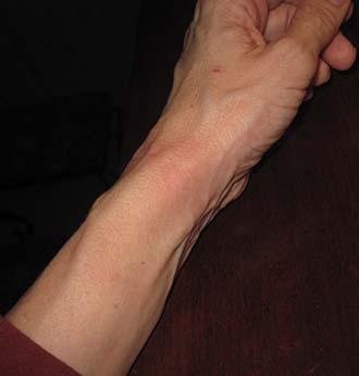 swollen wrist Rheumatoid Disease