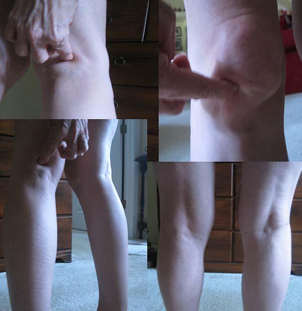 swollen knees Rheumatoid Arthritis / Rheumatoid Disease