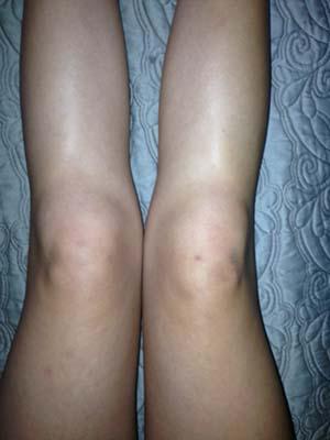 juvenile rheumatoid knees swelling