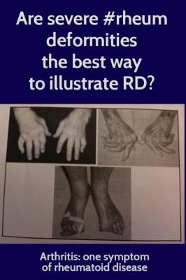 RA-deformities