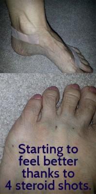 steroid-shots-left-foot