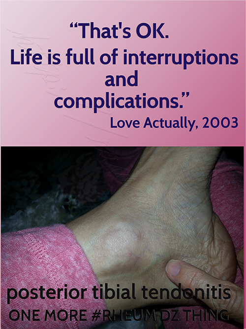swollen-ankle-interruption-quote