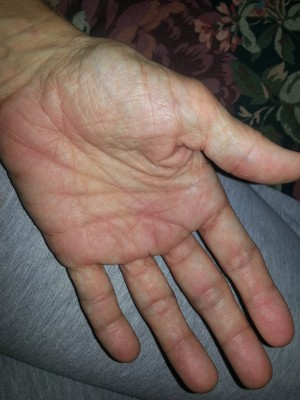 swollen hand with rheumatoid