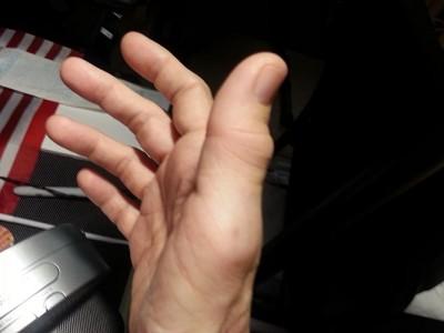 swollen rheumatoid arthritis thumb right IP & MP joints
