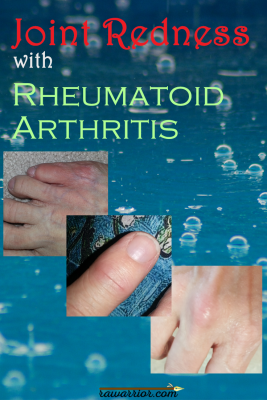 Joint Redness with Rheumatoid Arthritis