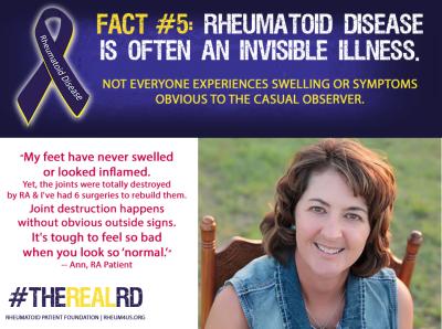 Rheumatoid Disease Fact 5