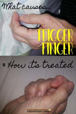 Trigger Finger in Rheumatoid Arthritis